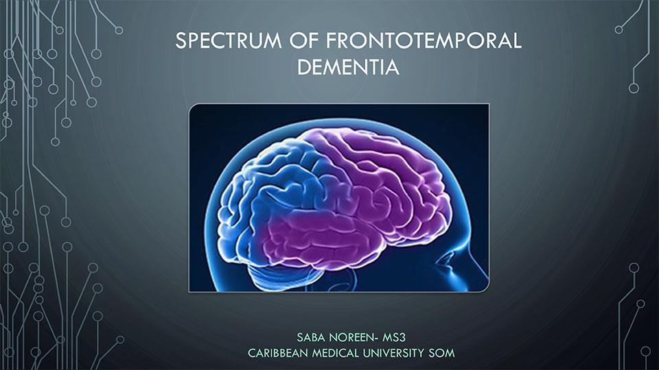 Spectrum of Frontotemporal Lobar Degeneration